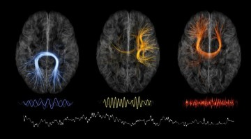 The Montreal Neurological Institute plans to free up its findings, including data that point to connections between brain regions communicating at different neural rhythms.