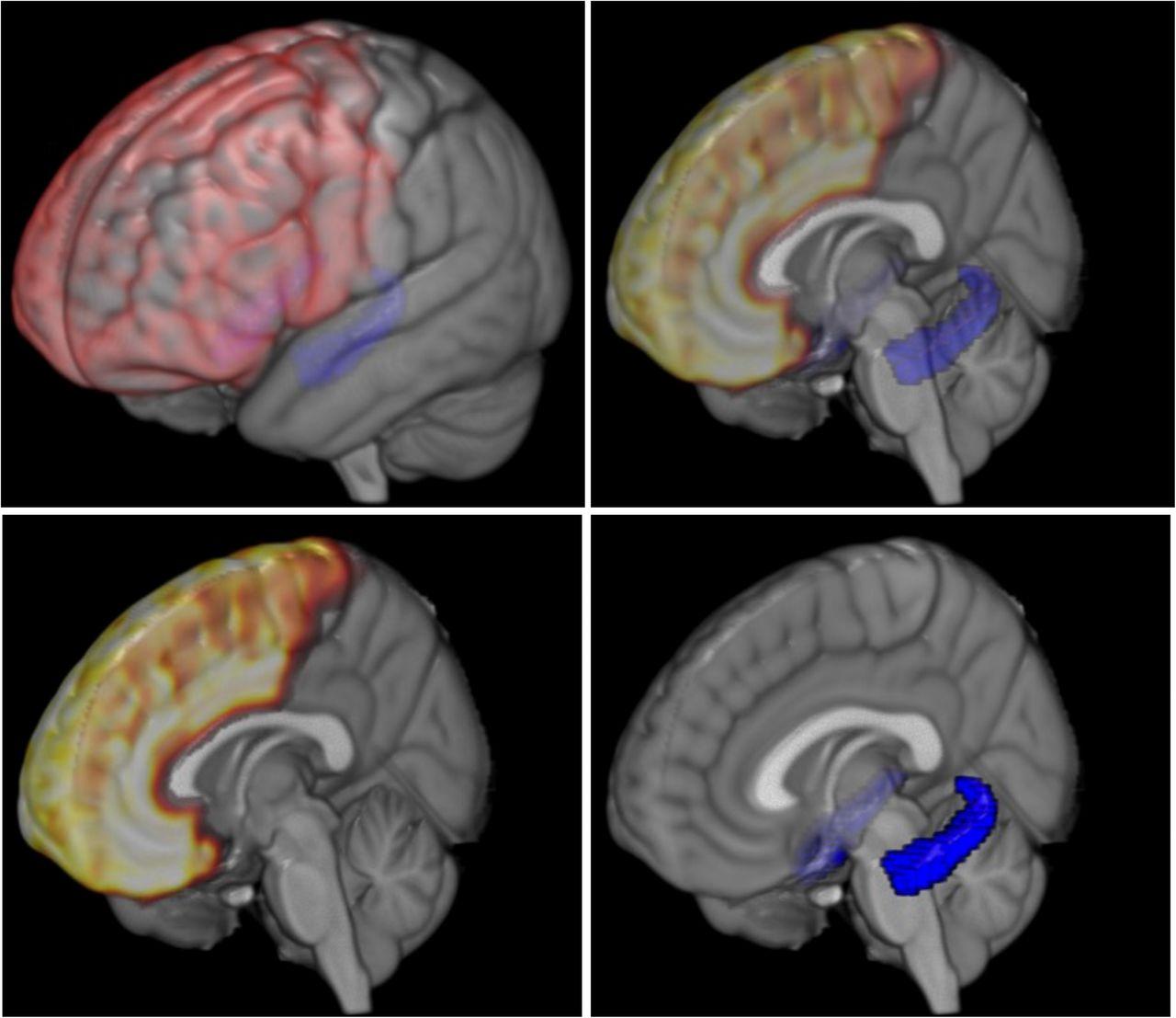 Основними осередками мозку, що унаочнюють відмінності у розвитку бідних дітей, є гіпокамп (позначений синім кольором) та лобова частина (позначена червоним/жовтим). Зображення надав Джеймі Хенсон (Університет Дюка, Дарем, Північна Кароліна, і Університет Північної Кароліни, Чапел-Хілл).